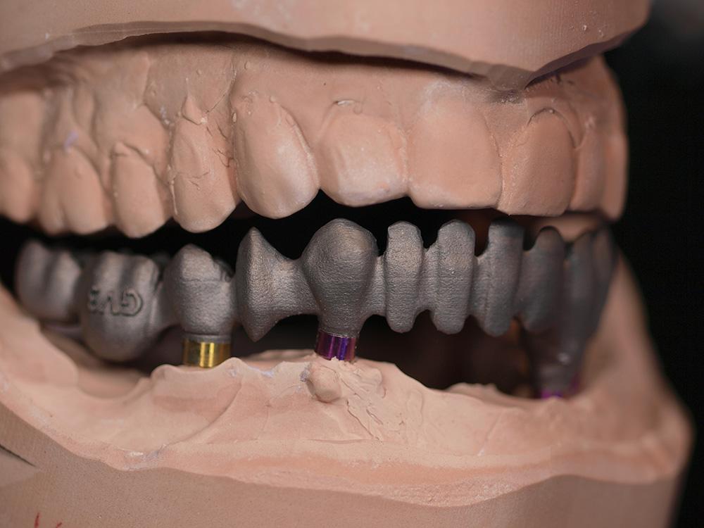 Das industriell in einer hochwertigen Kobalt-Chrom-Legierung gefräste ADHOC® Gerüst mit perfekter Implantat-Anschlussgeometrie.