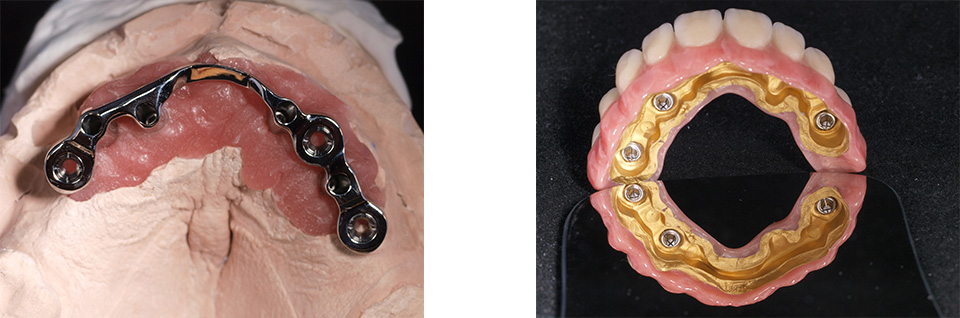 dreidimensionale-implantatplanung-bild2
