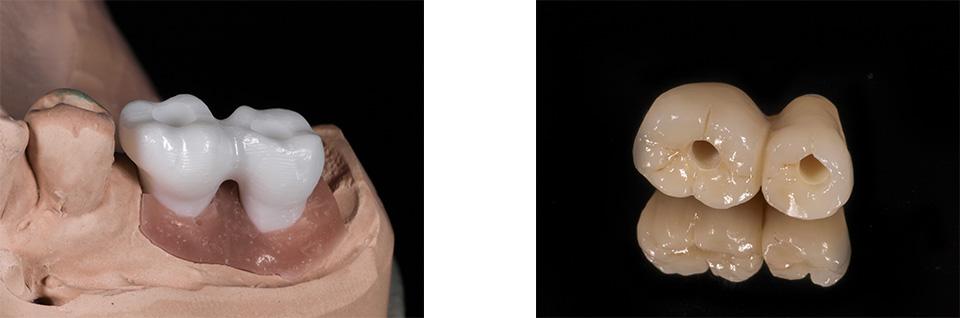 keramische-materialien-prothetische-restaurationen