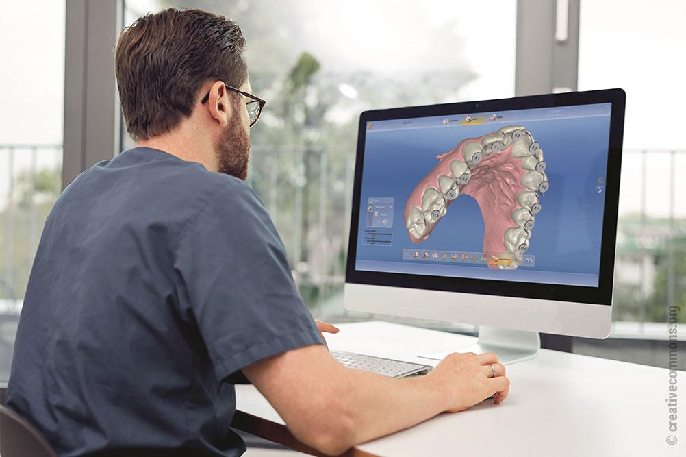 Anhand des digitalen Modells kann die Modellanalyse vorgenommen werden (hier mit der CEREC-Software)