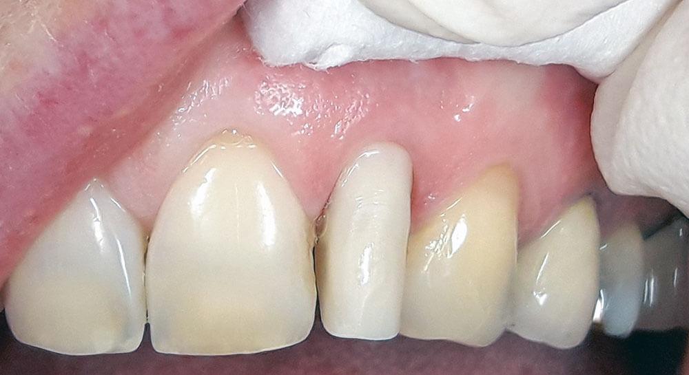 Erfahrung implantat zahn Zahnimplantate »